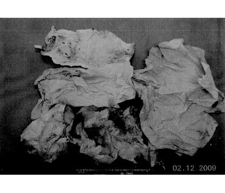 Hardcore Evidence Photographs: Casey Anthony   Patrishka's ... Caylee Anthony Evidence
